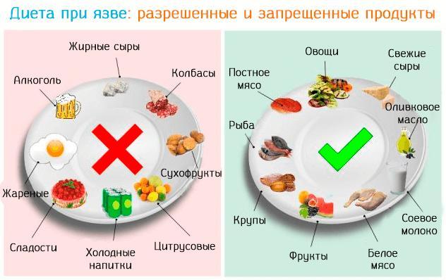 Что можно есть при гастрите и язве желудка