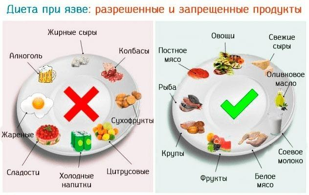 Диета при язве желудка: разрешенные и запрещенные продукты